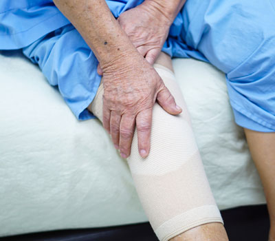 Leg injury & chronic wounds on an old person